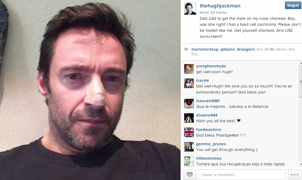 Hugh Jackman confiesa que ha sido tratado de cáncer de piel